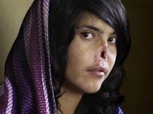 18-летняя Биби Айши, которой человек по законам Талибана отрезал нос и уши